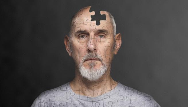 ალცჰეიმერის დაავადება